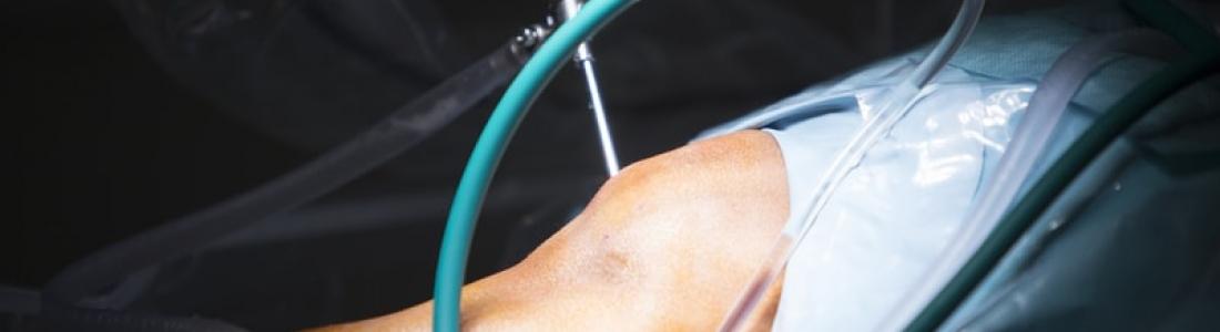 Especialidades de la ortopedia: artroscopia de rodilla